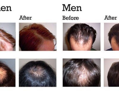 Use your own blood to regrow your hair- PRP HAIR TREATMENT IN BANGLADESH